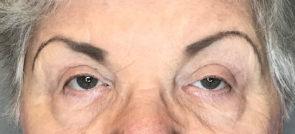 Blepharoplasty Before & After Patient #1784