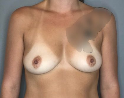 Breast Augmentation Before & After Patient #68