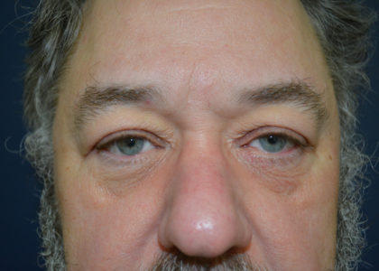 Blepharoplasty Before & After Patient #129