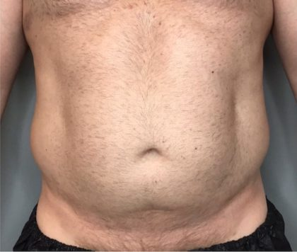 Liposuction Before & After Patient #95
