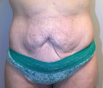 Tummy Tuck Before & After Patient #105