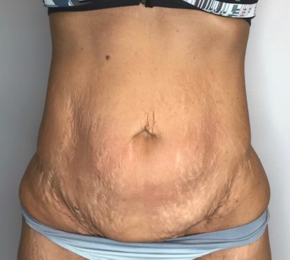 Tummy Tuck Before & After Patient #112