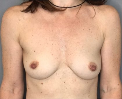 Breast Augmentation Before & After Patient #1796