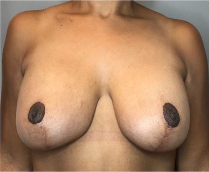 Breast Augmentation Before & After Patient #1813