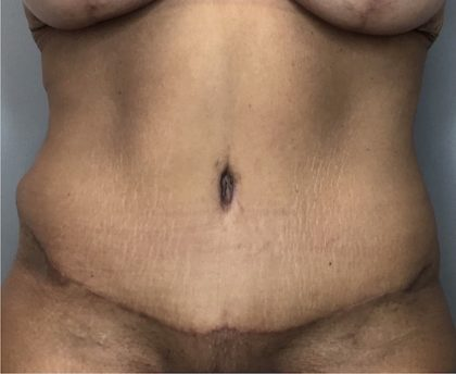 Tummy Tuck Before & After Patient #1805