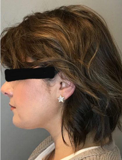 Renuvion Skin Tightening Before & After Patient #1834