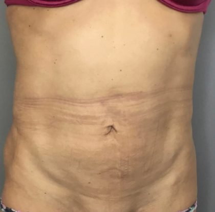Tummy Tuck Before & After Patient #1845
